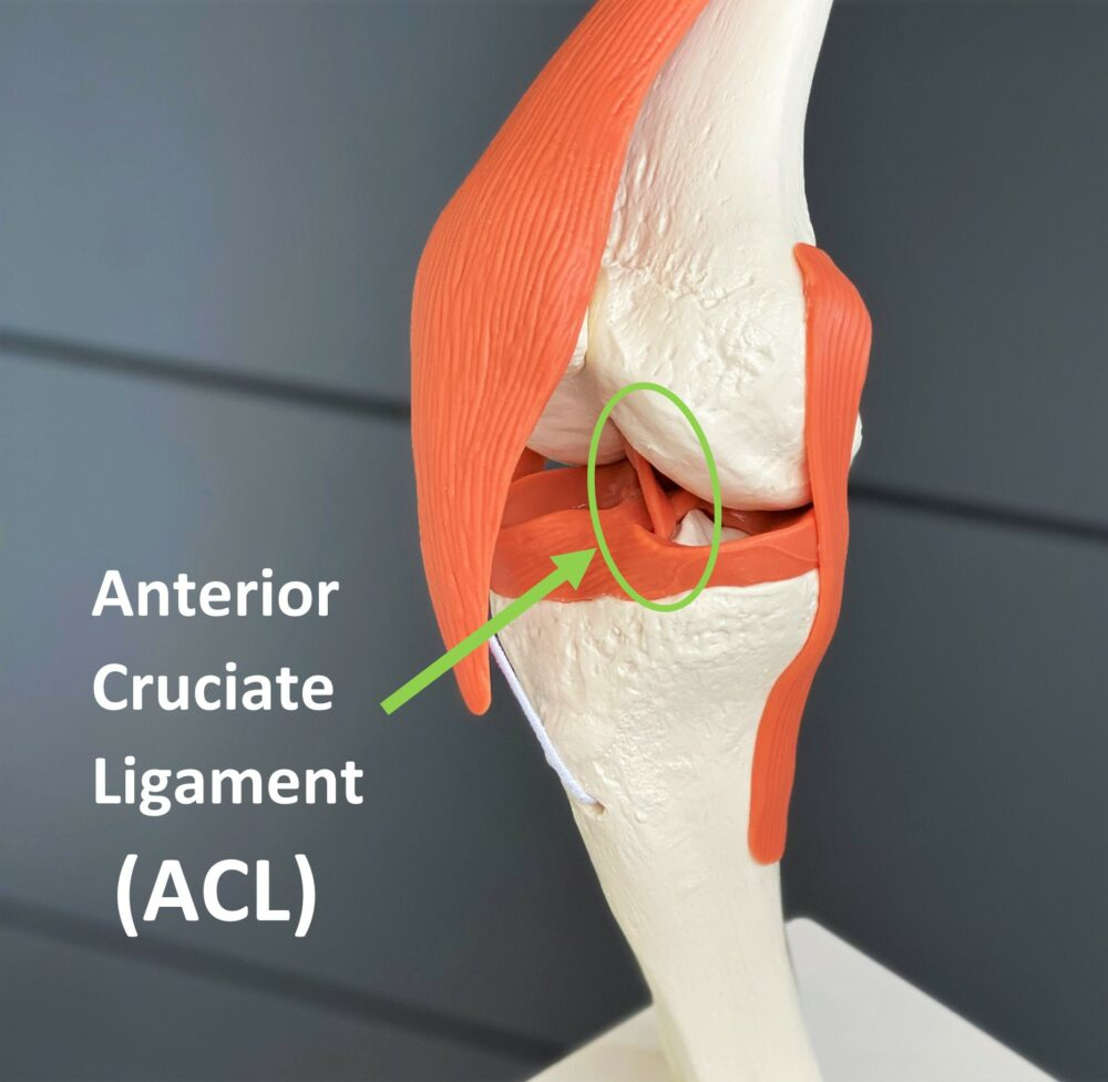Anatomical model of a knee joint highlighting the ACL or anterior cruciate ligament