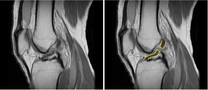 MRI of a knee joint highlighting a torn ACL or anterior cruciate ligament