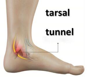 anatomical tarsal tunnel