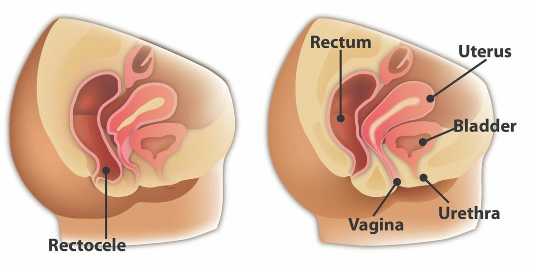 Pelvic rectocele bladder prolapse normal abnormal anatomy