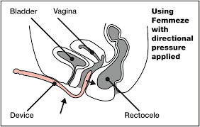 manage prolapse The femmeze tool for incomplete emptying of your bowels with a rectal prolapse to avoid pocketing